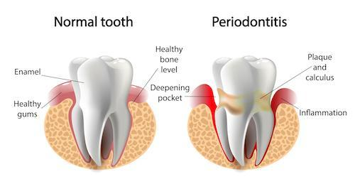 Gum Disease Diagram | Dentist Norfolk MA