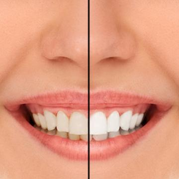 Before & After Whitening | Dentist Norfolk MA