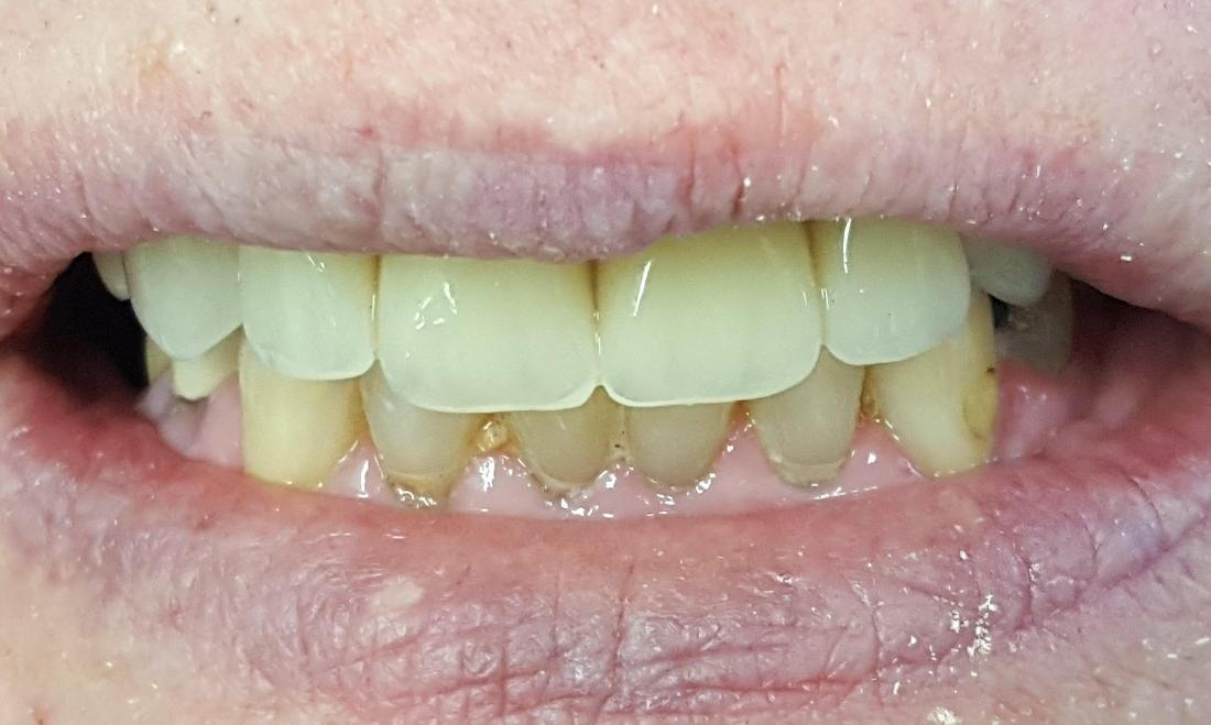 smile transformation with dentures | Norfolk County Dental Care
