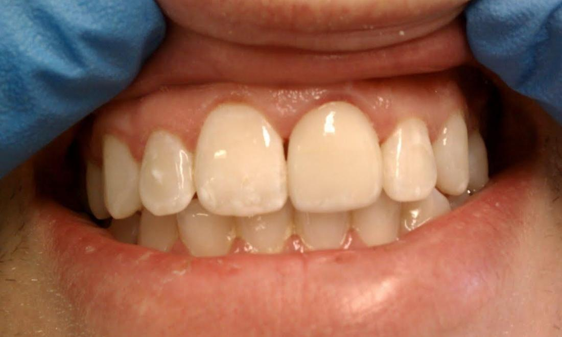 Porcelain Crowns Results | Norfolk MA