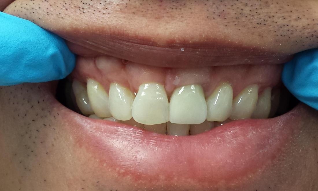 After Porcelain Crowns Image | Norfolk MA Dentist