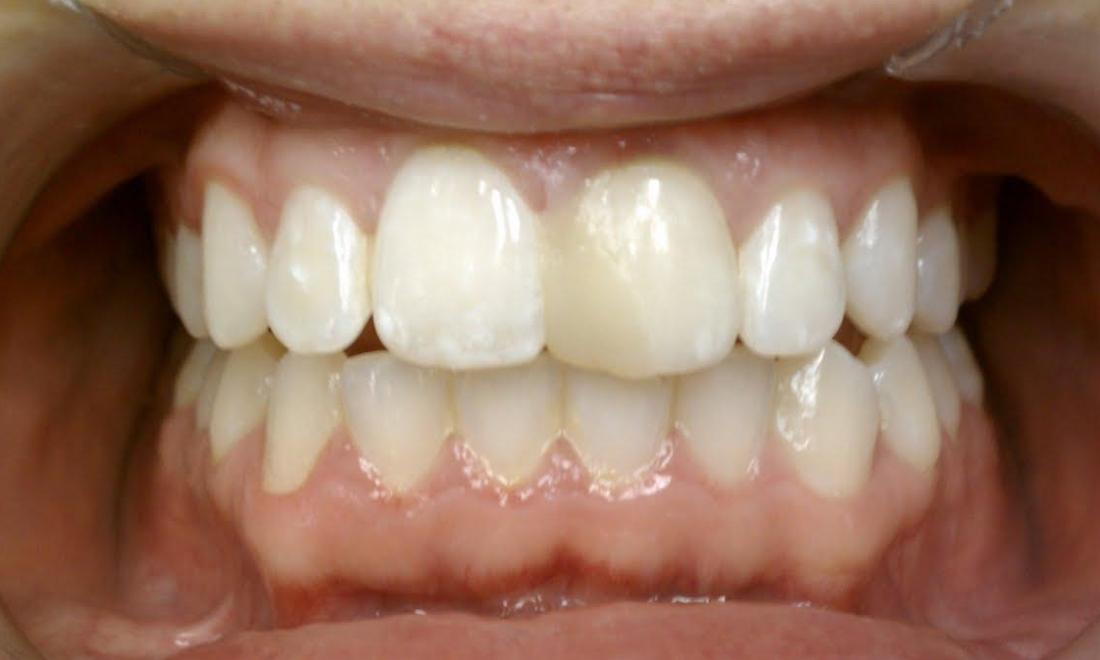 Porcelain Crowns Before & After | Norfolk MA