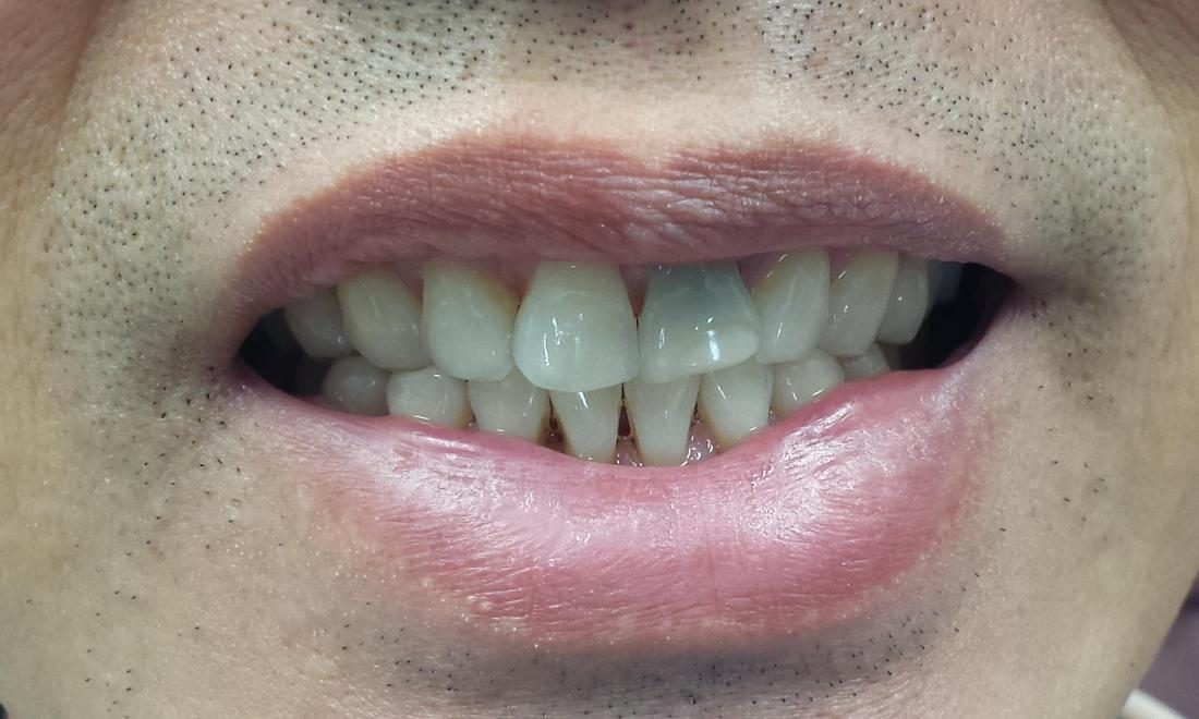 Before Porcelain Crowns Image | Norfolk MA Dentist