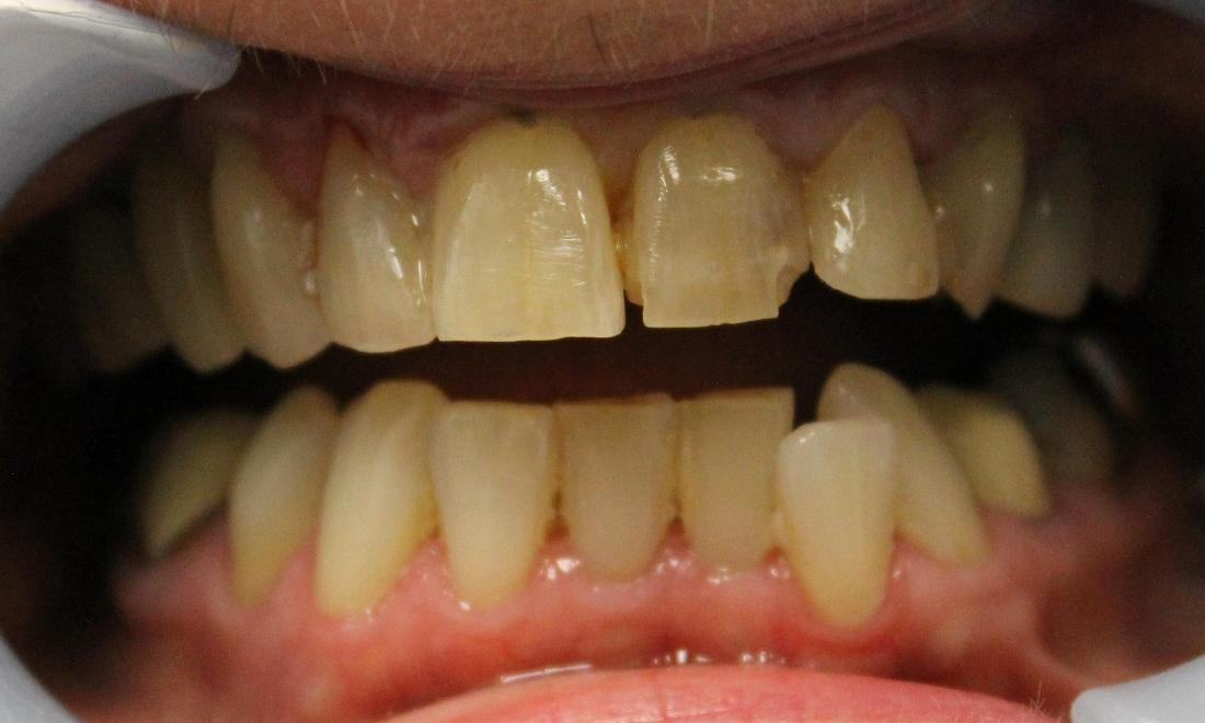 Patient with misaligners and severely discolored teeth at Norfolk County Dental Care