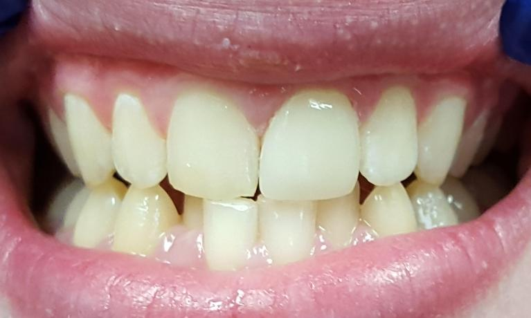CEREC Crown After Image | Norfolk MA