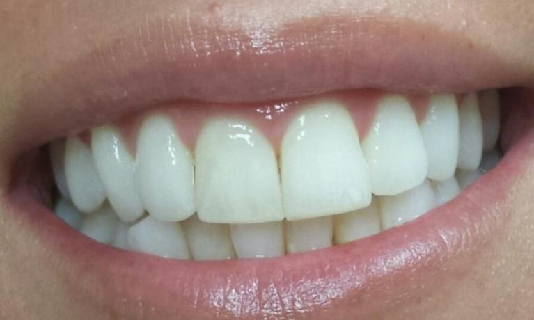 Invisalign after treatment | Norfolk County Dental Care