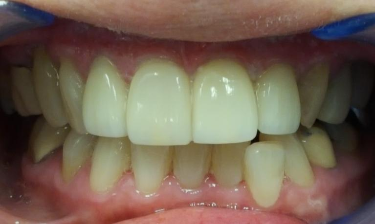 veneers smile transformation | Norfolk County Dental Care
