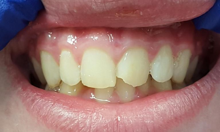 chipped tooth fixed by CEREC | Norfolk MA