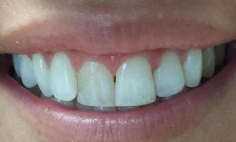 before Invisalign treatment | Norfolk County Dental Care